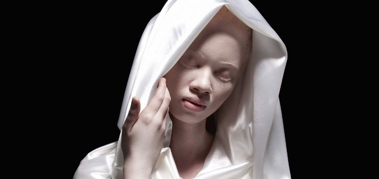 Thando Hopa: Albinism vs idealised beauty