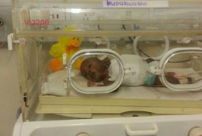 Zimbabwe conjoined twins separated in historic op