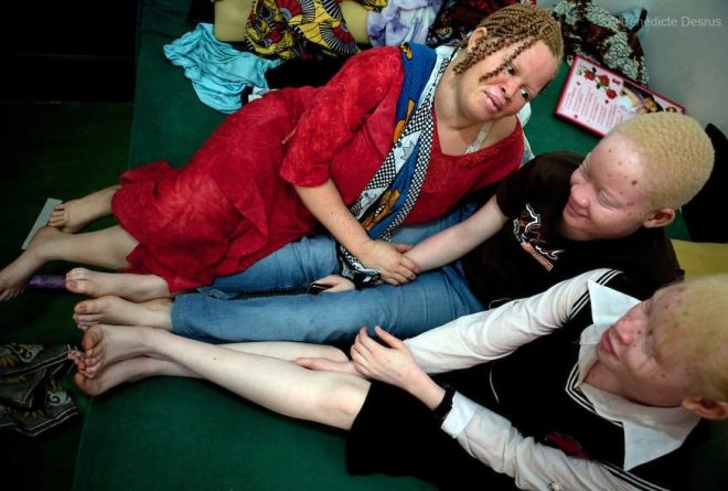 """Tanzania bans """"witchdoctors"""" to end albino murders"""