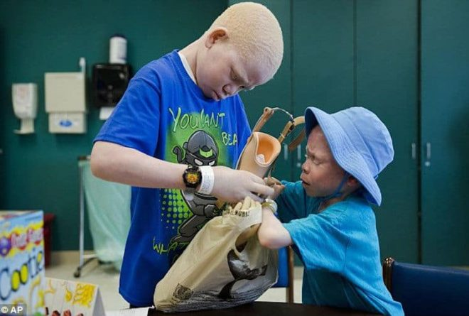 Albino witchcraft victims return to Tanzania with prosthetic limbs