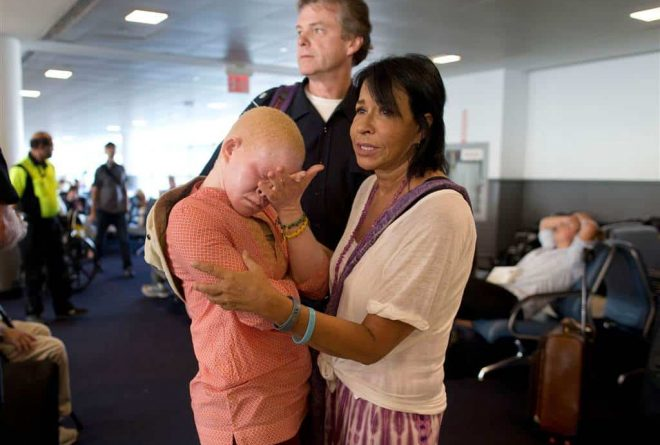 PICS: Tanzanian albino children receiving prosthetic limbs in US