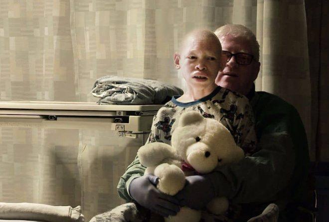 Tanzania blasts film documenting albino attacks