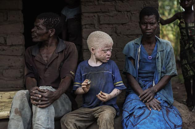 Malawi bans foreign witch doctors to stop albino killings