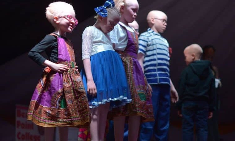 BeautyBeyondTheSkin: Kenya hosts inaugural Mr and Miss Albinism beauty pageant
