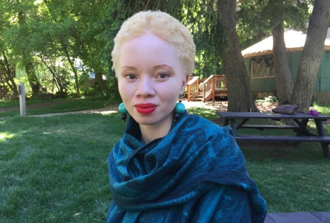 South African model with albinism, Thando Hopa is the new face of Audi Q2