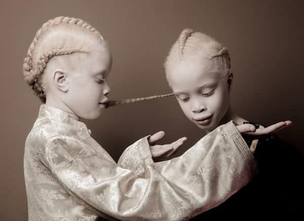 "International Albinism Awareness Day: ""shining our light to the world"""