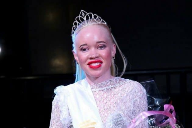 Zimbabwe crowns first Miss Albinism 2018 in a push against stigma