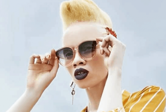 "Thando Hopa is the first woman with albinism on the cover of ""Vogue"" mag"