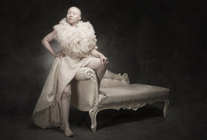 "Nigerian photographer Yetunde Ayeni-Babaeko raises awareness of albinism with her latest exhibition, titled ""White Ebony"""