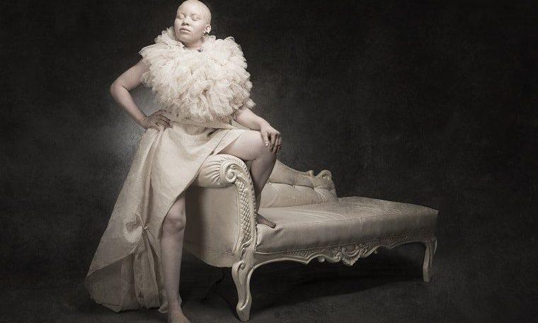 """Nigerian photographer Yetunde Ayeni-Babaeko raises awareness of albinism with her latest exhibition, titled """"White Ebony"""""""