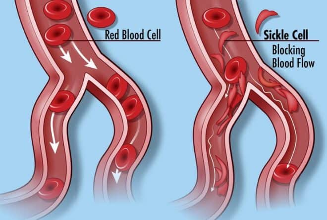 South Africa: UCT professor's research offers hope of treatment for sickle cell anaemia